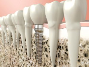 Have dental implants in North Naples when you want to replace missing teeth.
