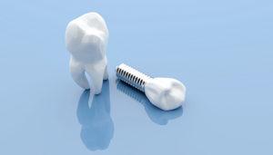 single dental implant against blue background