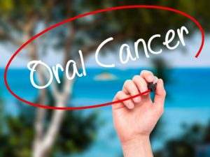 an oral cancer sign