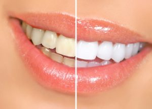 a before and after teeth whitening smile