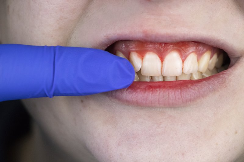 an up-close image of a gloved finger pointing to a person's gums that appear red, swollen, and are bleeding